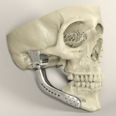 3D printed metal medical implants.LINK=>ARTICLE  3D Printing Healthcare Market is Expected to Grow by 18% Annually Until 2020