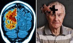 A HIGH-tech device that could prevent memory loss in dementia patients is set to bring new hope to millions of sufferers.