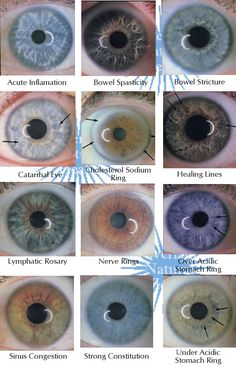 Examples of main iris markings/rings for iridology