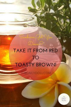DIY – Heal Your Sunburn (And Take it From Red to Toasty Brown)