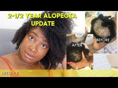 PrettyNflawed - YouTube Hair Remedies For Growth, Hair Growth, Scarring Alopecia, Three Boys, Fashion And Beauty Tips, Tops For Leggings, I Care, Parenting Advice, Washing Clothes