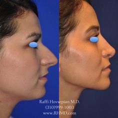 The Beverly Hills Model Makeover is a treatment created by Dr. Raffi Hovsepian inorder to provide a natural enhancement to your own facial features. Dr. Hovsepian has perfected his technique and focuses on enhancing and contouring your individual facial features. Here is an example of an amazing facial transformation. For more information visit www.RHMD.com | (310) 999-1003#JawLineEnhancement #Liposuction #Botox #SkinCare #Filler #DrRaffiHovsepian #PlasticSurgery #ModelMakeover #model