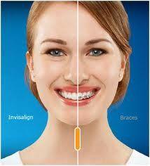 Invisalign vs. Traditional Braces  http://www.beautifulsmilesclayton.com/orthodontics.php