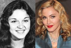 Madonna was ugly as hell. That goes to show plastic surgery does wonders to white w.