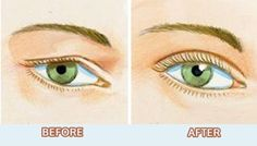 How to Tighten Loose Skin on Eyelids Naturally - A 'must do' beauty tips list! Beauty Tips List, Beauty Hacks, Face Tightening, Tighten Loose Skin, Mask For Oily Skin, Facial Skin Care, Good Skin, Saggy Eyes, Gypsy Eyes