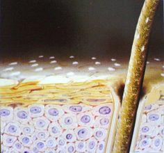 Στο τριχωτό της κεφαλής μας υπάρχουν πολλά κοινά μικρόβια. Ανάμεσά τους, τα Malassezia, λιποφιλείς μύκητες. Οι μύκητες αυτοί αναπτύσσονται υπερβολικά όταν αυξάνεται η έκκριση σμήγματος, δηλαδή στην αρχή της εφηβείας. Μπορεί να αντιπροσωπεύουν το 75% με 80% των μικροβίων του τριχωτού της κεφαλής. Η επιδερμίδα της κεφαλής γίνεται δυσανεκτική και παρουσιάζει διαταραχές: φολίδες, ερεθισμούς, φαγούρα.