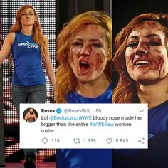 It was more than a bloody nose. It was the fact that she had her nose broken, endured a concussion, and still managed to kick ass! Wrestling Memes, Wrestling Divas, Becky Lynch, Wwe Quotes, Becky Wwe, Wwe Raw And Smackdown, Wwe Game, Wwe Funny, Rebecca Quin