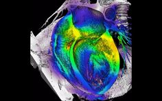 Aunque las opciones de estilo de vida contribuyen a las enfermedades del corazón, la genética desempeña un papel importante, pero esta faceta genética ha...