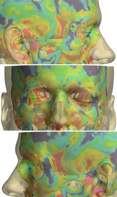 Imágenes tomadas por tomografía computarizada de la cabeza para medir el espesor del craneo en diferentes puntos. De Graham Treece.