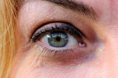 With millions of Americans undergoing LASIK surgery each year, most might assume that the procedure is completely safe and harmless, but a recent study showed that a significant percentage of LASIK patients developed new vision problems after the treatment was performed.  LASIK (laser in situ kera