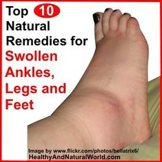 Top 10 Natural Remedies for Swollen Ankles, Legs and Feet http://www.calgary.isgreen.ca