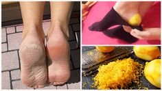 Daily Health Tips: Use Lemon Peels to Heal Your Feet