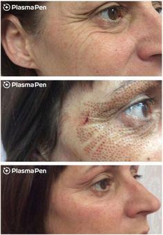 Skin Tightening Procedures, Laser Skin Tightening, Tighten Under Eye Skin, Plasma Facial, Forehead Lift, Skin Tag Removal, Lip Injections, Loose Skin, Sagging Skin