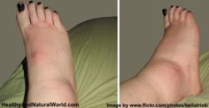 Top 10 Natural Remedies for Swollen Ankles, Legs and Feet