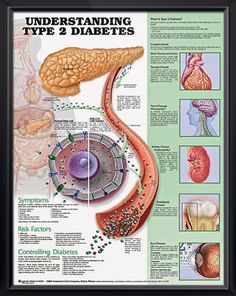 Diabetes is a serious health issue and it seems to be on the rise each and every year. Diabetes often is common with people who neglect their weight or have a poorly balanced diet. Pre diabetes and diabetes can both be improved with a regular exercise. Diabetes Information, Medical Information, Diabetes Food, Diabetes Recipes, Diabetes Facts, Diabetes Care, Student Nurse, Diabetic Recipes, Health Education