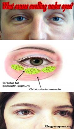 Periorbital Edema Causes and Treatment  Periorbital edema is the medical terms for swelling of the skin around the eyes. It can be an allergic reaction, infection or external trauma that results in swelling under eye.  http://allergy-symptoms.org/periorbital-edema-causes/