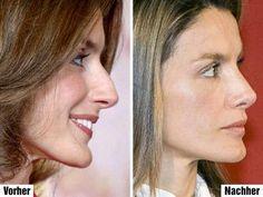 Letizia Ortiz - plastic surgery