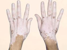 Vitiligo (vit-ih-LIE-go) is a disease that causes the loss of skin color in blotches. The extent and rate of color loss from vitiligo is unpredictable. The disorder affects all races and both sexes equally, however, it is more noticeable in people with dark skin.