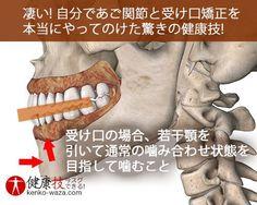 凄い! 自分であご関節と受け口矯正を本当にやってのけた健康技9