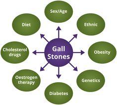 Risk Factors of Gallstones. http://welcomecure.com/Healthcare/Gallstones/Gallstones-Risk-Factors