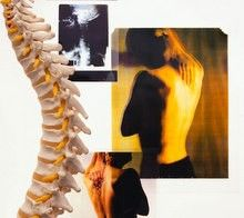 Natural Back Pain Treatment