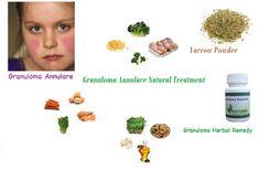 Granuloma Annulare Natural Treatment