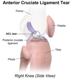 Side on view of an ACL knee injury. Find out about the causes, symptoms, treatment and prevention options