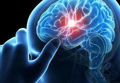 Εγκεφαλικό: Προσοχή στα πρώιμα σημάδια – Πώς μπορείτε να το προλάβετε!