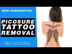 Change is not regret laser tattoo removal pinterest for Picosure tattoo removal michigan