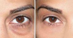 Cómo deshacerse de las obstinadas bolsas de los ojos con aceite esencial y aloe vera #salud