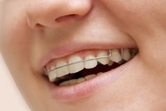 Need a retainer replacement? Whether you have lost, damaged or broken your retainer, you need to visit a dentist or orthodontist near me to get your lost retainer replacement. Ivanov Orthodontic Experts offer different types of retainers to fit your orthodontic needs. Contact our office today! 786-540-1919 After Braces, Clear Retainers, Tooth Replacement, Teeth Shape, Dental Problems, Orthodontics, Teeth Retainer, Clinic, Lost