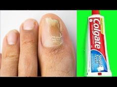 Toenail Fungus Remedies, Pedicure At Home, Free To Use Images, Skin Care Remedies, Toe Nails, Fungi, Anniversary Gifts, Dental, Manicure