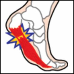 How to Heal and Prevent Plantar Fasciitis (Bruised Heel) - Yahoo! Voices - voices.yahoo.com