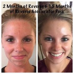 Beautiful results using the Reverse Accelerator pack.  Ready to try it yet? Message me to get started.