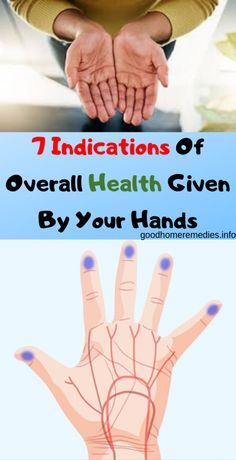 7 Indications Of Overall Health Given By Your Hands! – must see this 7 Indications Of Overall Health Given By Your Hands! – must see this The post 7 Indications Of Overall Health Given By Your Hands! – must see this appeared first on Best Pins. Inbound Marketing, Marketing Digital, Rough Hands, Endocannabinoid System, Little Presents, Group Boards, Thinking Day, Yoga Quotes, Morning Yoga