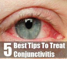 5 Best Tips To Treat Conjunctivitis