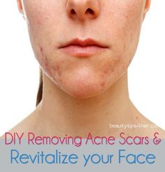 As if having pimples weren't bad enough, they can also leave behind annoying acne scars. If you're fair-skinned, they're probably dark pinkish; if you're medium-to-dark, the spots are a deep brown – but no matter the color, these darkly pigmented areas can take forever to fade on their own.