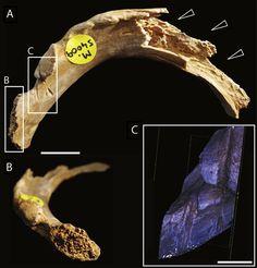 Daños masticación humana en un hueso de la costilla, que presentan grietas hechas por dientes de sierra, excavada en surcos y marcas de corte