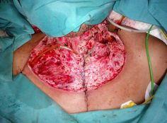 Cervicotomi and sternotomi debridement in patient with descending necrotizing mediastinitis