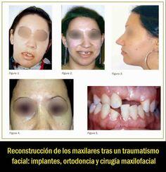Reconstrucción de los maxilares tras un traumatismo facial: implantes, ortodoncia y cirugía maxilofacial | OVI Dental