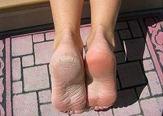 GET RID OF DRY CRACKED SKIN!!!!!!!!    First get a bucket of warm water, not to hot, with a cup full of Epsom salt. Allow salt to dissolve before placing your feet inside. Once the salt has dissolved, place your feet inside of the water, allow to soak for up to 30 minutes. 2 Remove feet from water after 30 minutes. Scrub gently with toothbrush to remove all loose, dry skin. This only takes a small amount of time.The skin should be very easy to remove. Rinse feet with water and pat dry with…