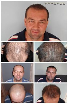 Photo isolated results of hair transplantation, depends on the amount of transplanted hair	http://phaeyde.com/hair-transplantation