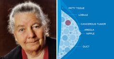 """Ela descobriu a cura do câncer em 1951, mas """"eles"""" escondem isso de você   Cura pela Natureza"""