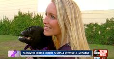 """2 Incredible Survivors, 1 Human, 1 Dog, Share A Beautiful Bond 