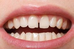 Dr. Dean Salo can fix diastemas or spaces between two adjacent teeth with simple cosmetic dentistry procedures.