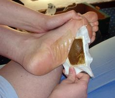 Detox Your Body Overnight with Homemade Foot Pads – Here's How! Foot pads are commonly worn in Japan – people stick the pads to the soles o. Health And Beauty Tips, Health And Wellness, Health Fitness, Natural Home Remedies, Natural Healing, Homemade Detox, Foot Detox, Foot Pads, Detox Your Body
