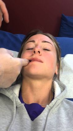 Treatment of TMJ Disorder in 5 mins demonstrates by Dr. Lombardi DC