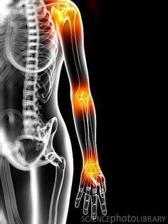 how to get rid of calcific tendonitis naturally