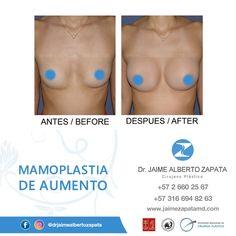 CASO MAMOPLASTIA DE AUMENTO  Dr. Jaime Alberto Zapata - Cirujano Plástico  Miembro de: SCCP - SBCP - ASAPS - FILACP - ISAPS  Contáctanos: (+57 2) 660 25 67 - (+57) 316 694 82 63.  #mamoplastia #mamoplastiadeaumento #aumentodesenos #breastaugmentation #antesydespues #cx #cirugiaplastica #cirugiaplasticacolombia #plasticsurgery #plasticsurgerycolombia #cirugiaestetica #estetica #calico #colombia