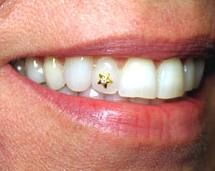 Dental Jewelry, Tooth Jewelry, Tooth Gem, Diamond Jewelry, Gems Jewelry, Jewellery, Gem Diamonds, Grillz, Reasons To Smile